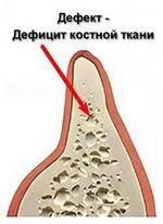 Пример дефицита костной ткани