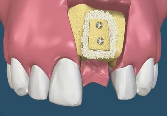 Костная аугментация челюсти