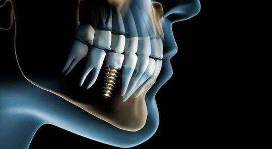 Классическая имплантация зуба