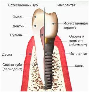 Строение зуба и импланта