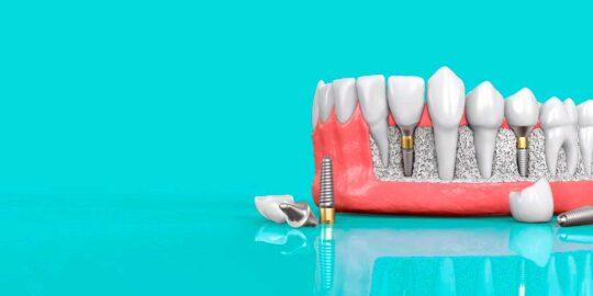 Проведение имплантации зубов в стоматологии