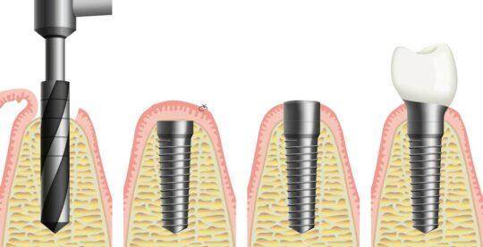 Быстрая имплантация зуба