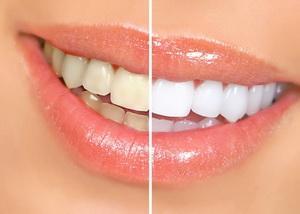 Офисное отбеливание в стоматологии Минска
