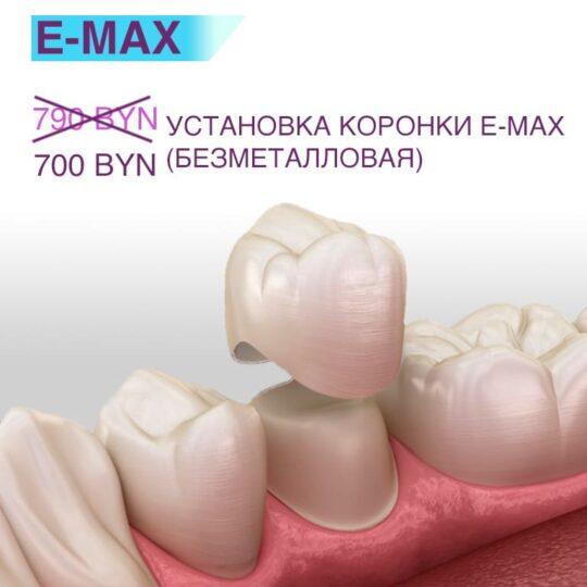 Безметалловая коронка E-max 700 BYN (акция завершена)
