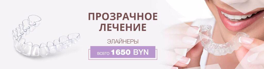 Акция прозрачное лечение в стоматологии в Минске