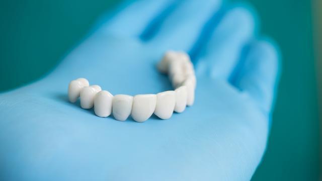 Установка безметалловых коронок на зубы