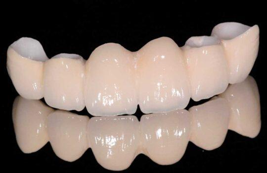 Установка коронок из циркония на зубы