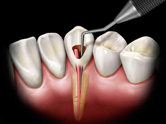 Эндодонтическое лечение зубов в стоматологии