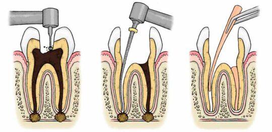 Эндодонтия в стоматологии ЭверестДент