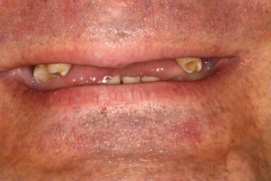 Фото до проведения имплантации зубов
