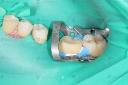 Фото до реставрации зуба