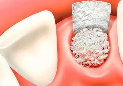 Наращивание костной ткани на верхней челюсти