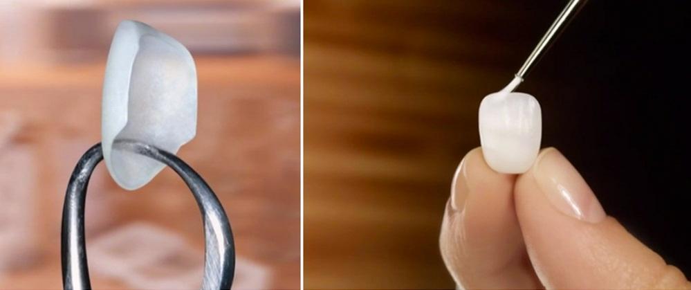 Как выглядит люминир для зуба