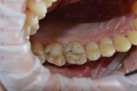 Фото примера кариеса на зубах