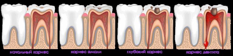 Стадии развития кариеса зуба