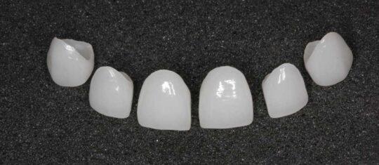 Пример изготовленных керамических виниров