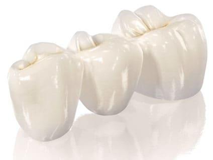 Установка керамической коронки на зуб
