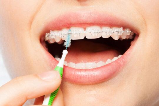 Керамические брекет-системы на верхней челюсти