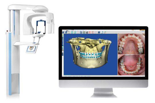 КЛКТ зубов в стоматологии