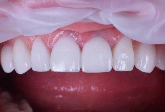 Установка виниров из композита на зубы