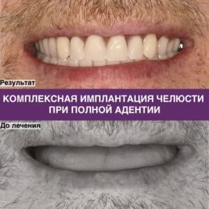 Фото комплексной имплантации челюсти при полной адентии