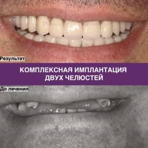 Фото примера комплексной имплантации двух челюстей