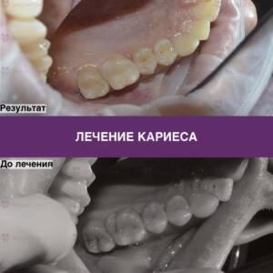 Пример лечения кариеса в стоматологии - фото