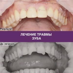 Пример выполненного лечения травмы зуба