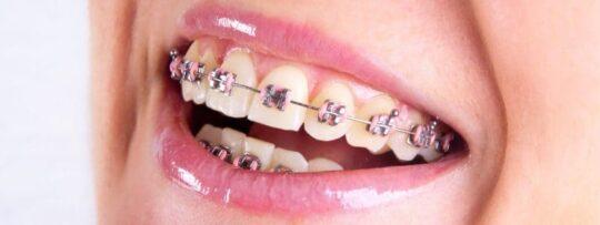 Металлические брекеты на зубах - фото