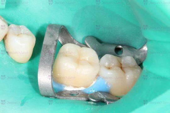 Фото наращивания зуба Emax