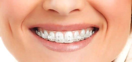 Невидимые брекеты на зубах