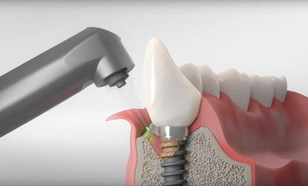 Лечение переимплантита в стоматологии