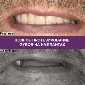 Фото примера полного протезирования зубов на имплантах