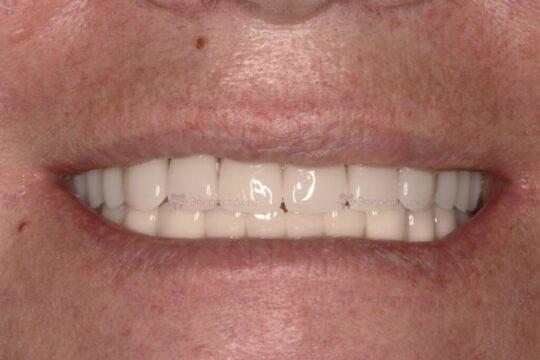 Фото примера протезирования частично-съемным и съемным зубным протезами