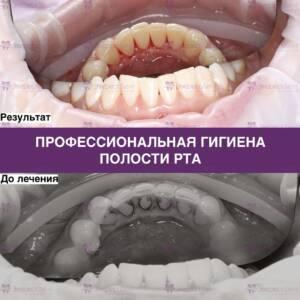 Профессиональная гигиена полости рта - фото