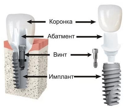 Пример протеза на импланте