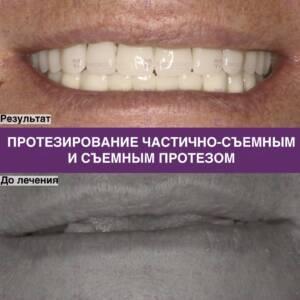 Фото протезирования частично-съемным и съемным протезами