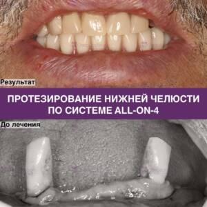 Пример протезирования нижней челюсти по системе All-on-4 - фото