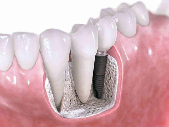 Пример протезирования зубов на имплантах