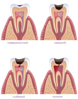 Виды пульпита зуба