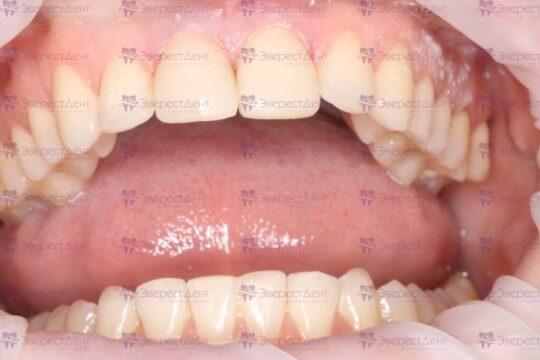 Фото реставрации скола зуба