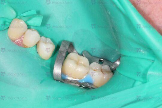 Фото реставрации зуба коронкой Имакс