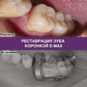 Фото реставрации зуба коронкой E-max