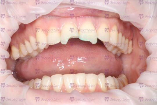 Фото скола зуба