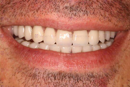 Фото тотальной имплантации челюсти