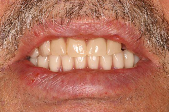 Пример тотальной имплантации в стоматологии