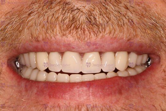 Пример тотальной имплантации зубов