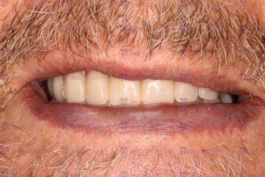 Фото тотального протезирования двух челюстей
