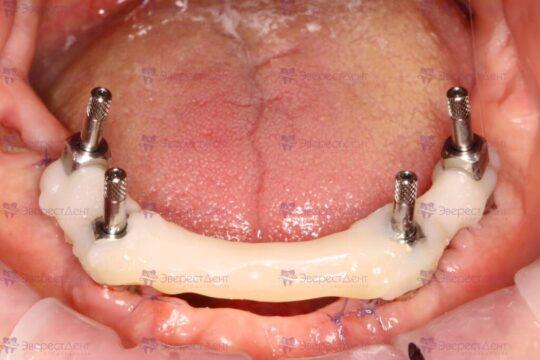 Фото установки 4 имплантов на нижнюю челюсть