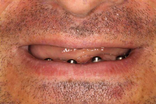 Фото установки имплантов по технологии All-on-4